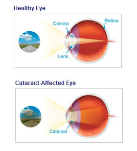 Cataract Illustration - Eye Disorders