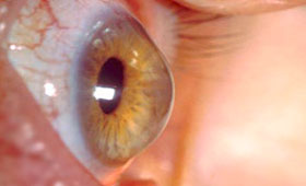 Keratoconus - Eye Disorders